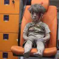 Bloodied Young Boy Becomes Face of Suffering in Aleppo