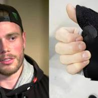 Gus Kenworthy Takes Jab at Mike Pence with Broken Thumb Announcement