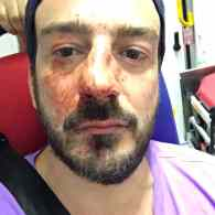 Activist Violently Assaulted in 5th Homophobic Attack in Paris in a Month