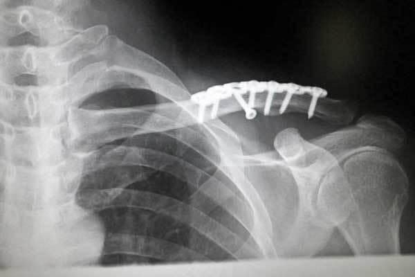 鎖骨をプレート固定