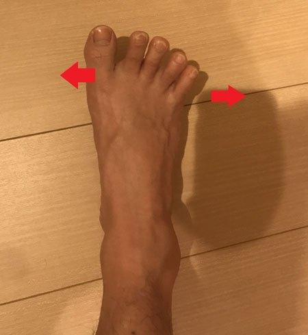 母趾外転筋の筋力トレーニング