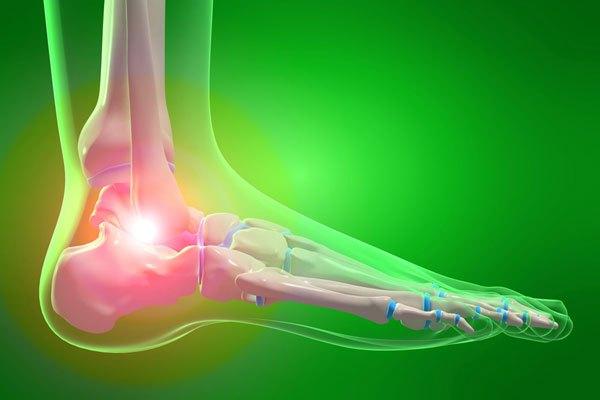 有痛性外脛骨の痛みを取る!治療・インソール・テーピング全知識