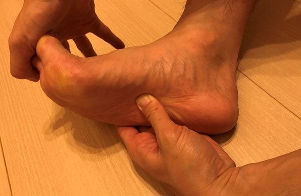 足底筋膜炎ストレッチ