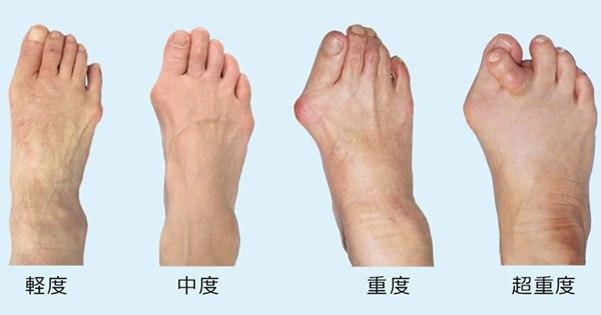 外反母趾の重症度