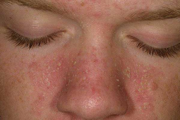 脂漏性皮膚炎