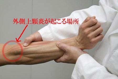 肘の外側にある骨の出っ張り