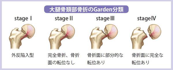 Garden(ガーデン)分類