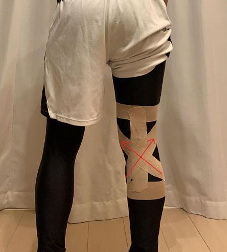 後十字靭帯損傷に効果的なテーピング