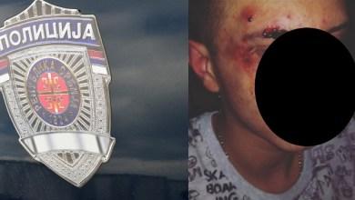 """Photo of UCENILI RODITELJE? Zbog prebijanja maloletnika, unutrašnja kontrola """"češlja"""" petrovačku policiju!"""
