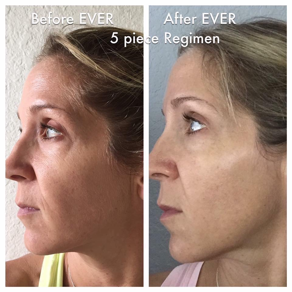 ever skincare before and after