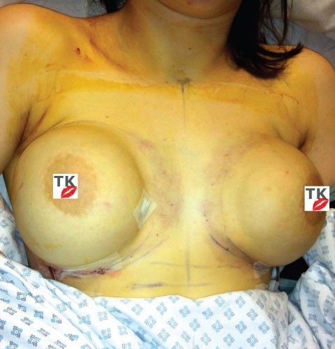 My New Implants Directly After Surgery Without Any Bandages
