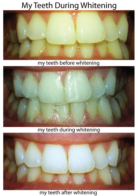 Crest review strip whitening
