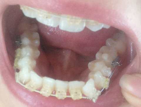 My Wire Has Pinged Off The Bracket Again On My Troublesome Tooth
