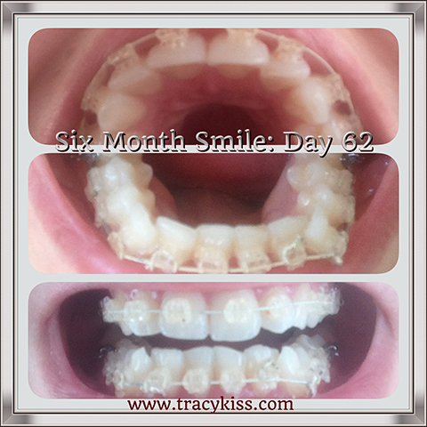 My Six Month Smile Day 62 Progress