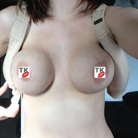 My New Breasts 3 Weeks After Surgery