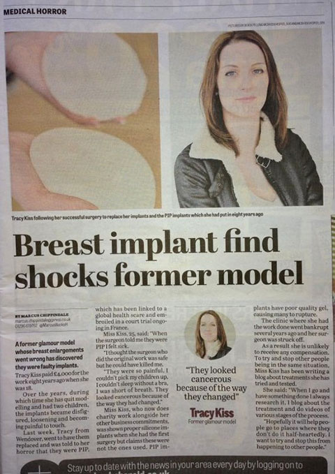 The Bucks Herald Covered The News Of My Implants Being PIP