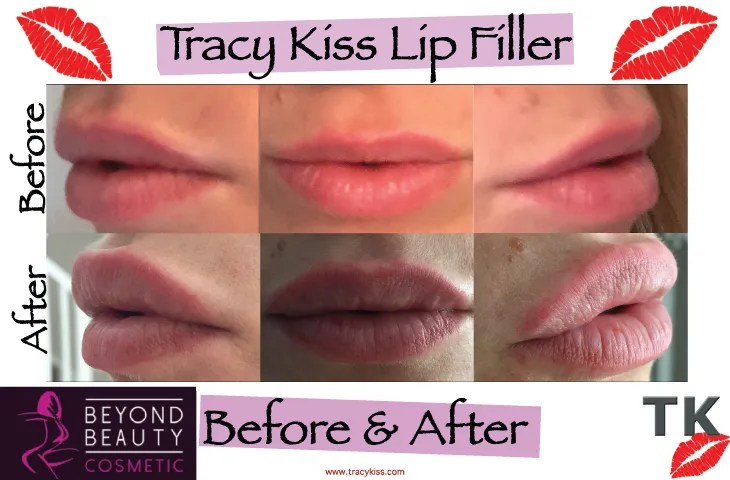 Tracy Kiss Lips Before And After