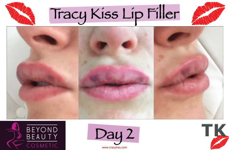 Tracy Kiss Lips Day 2