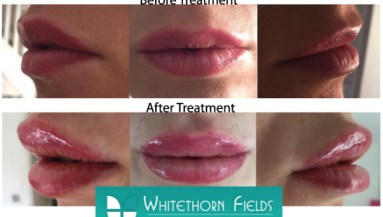 Inka Belle Semi Permanent Makeup Lip Blush Treatment