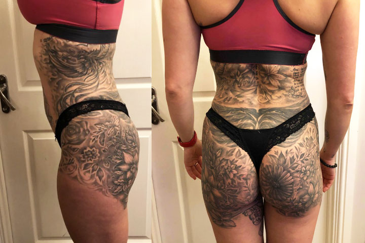 Skinny Girl + Supercharged BBL - My Surgical Diary - Tracy Kiss