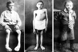 victims Hadamar euthansia camp nazi germany