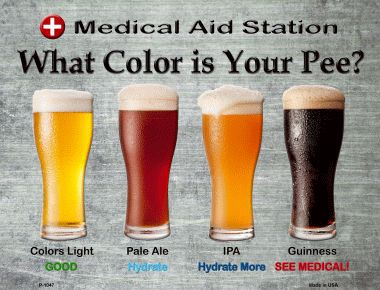 Dehydration Urin Farbe