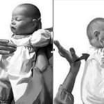 Phản ứng nhanh khi trẻ bị dị vật đường thở