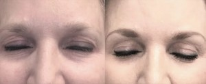 Plasma-tightening-before-and-after-1-week-1024x419