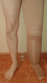 Linfedema con vendaje previo al tratamiento