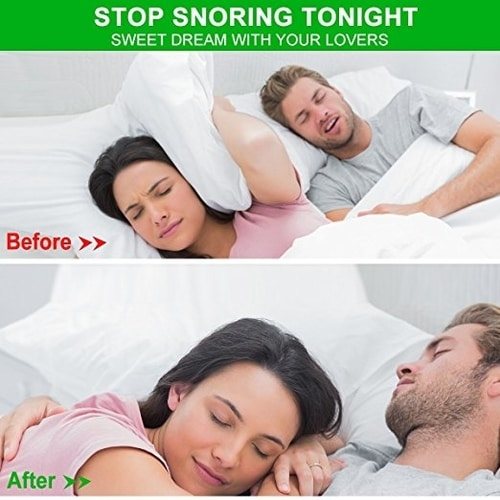 Best Stop Snoring Mouthpiece - Anti Snoring Solutions Mouthguard