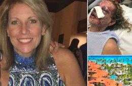 Majestic Resort closed where Tsmmy Daley Was Beaten