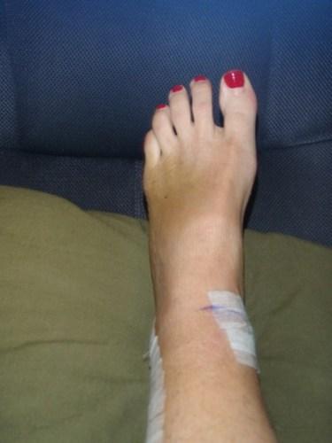 3 week post-op Trimalleolar fracture