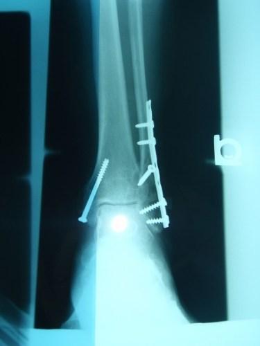 Plates Screws Trimalleolar Fracture