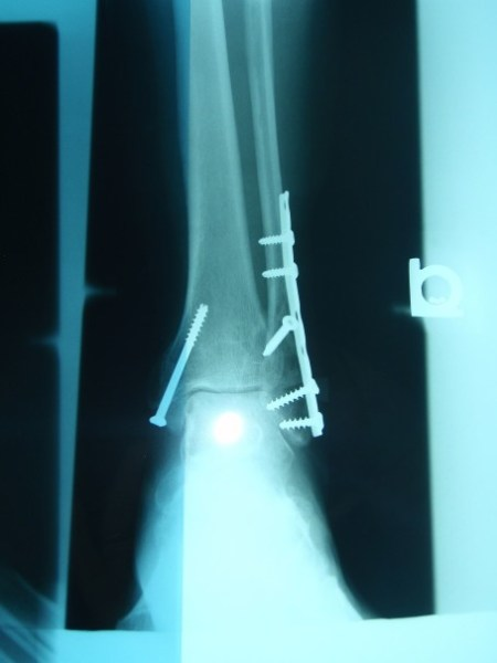 Trimalleolar fracture x-ray