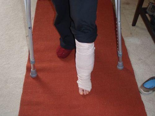 Was walkin' within 2 weeks of my last surgery