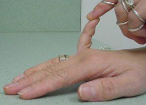 mali prst