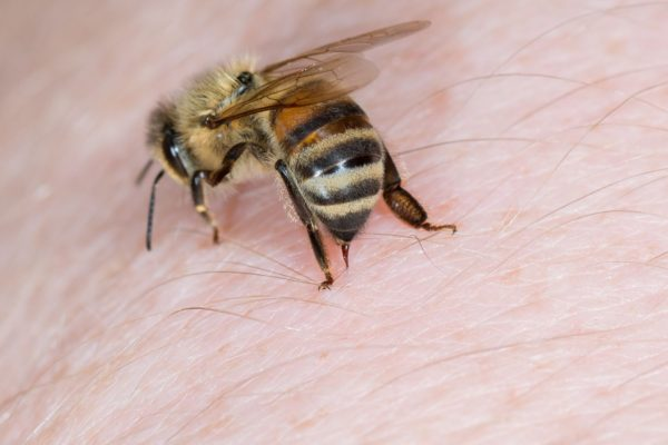 Bee and Wasp Stings > Symptoms | Treatment | Home remedies | When to call a doctor | Prevention
