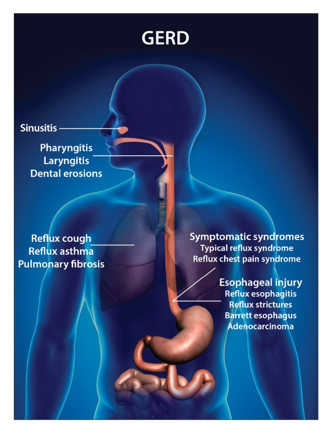 acid reflux and asthma