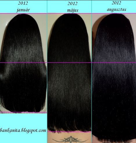 Biotin for Hair Growth : Biotin Before and After : Hair Growth ...