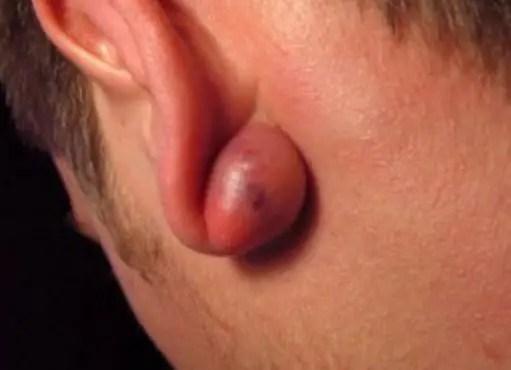 Keloid bump on ear or earring after piercing