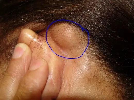 Large lipoma bump behind ears - movable