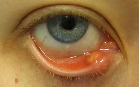 Pimple or bump inside eyelid
