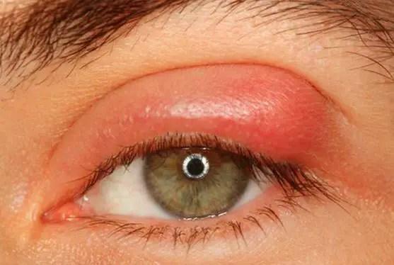 Swollen eyelid from stye
