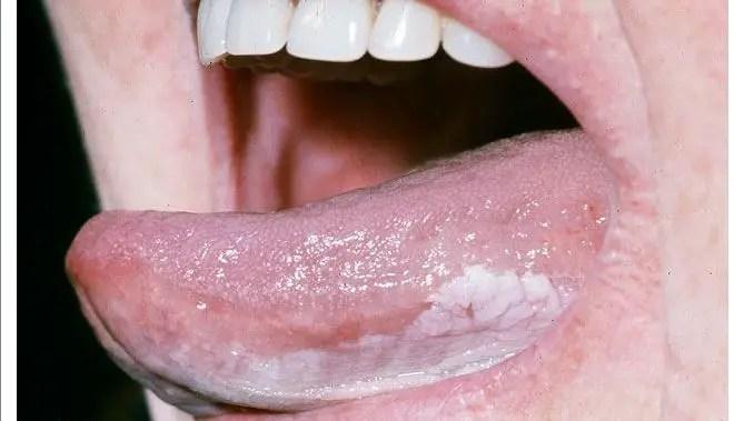 Tongue Spot Red Dark