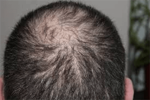 thinning hair unique hypothyroidism symptom