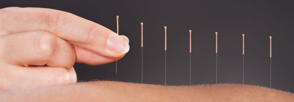 Image result for acupuncture for pain banner image