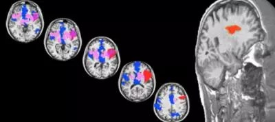 Brainscans showing anterior and posterior insula