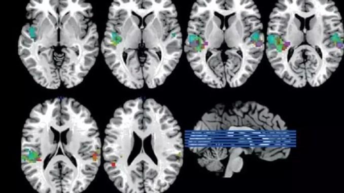Subbass brains feature