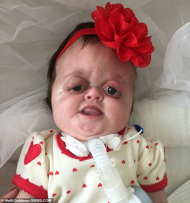 The parents of a baby girl with facial disfigurements have hit back after vicious online trolls branded her a