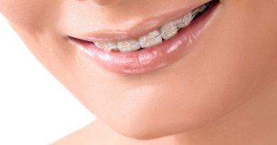 Reasons to get Orthodontic Treatment